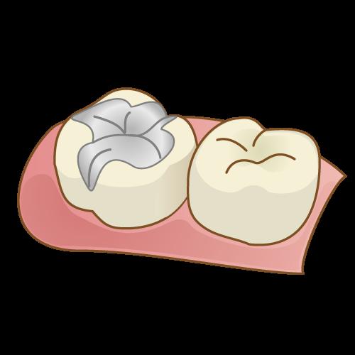 奥歯が欠けたときの処置イラスト